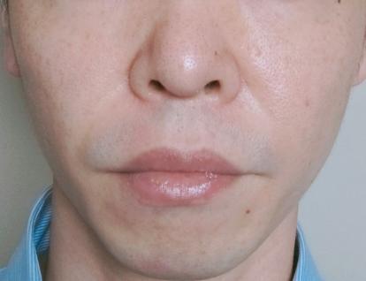 泡洗顔の4ヶ月後