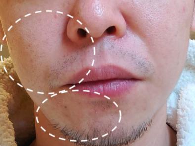泡洗顔開始当初のアップ顔写真