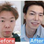 湘南美容外科で二重にした男のブログ|埋没と切開を両方やってみた