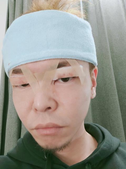 二重切開の手術当日